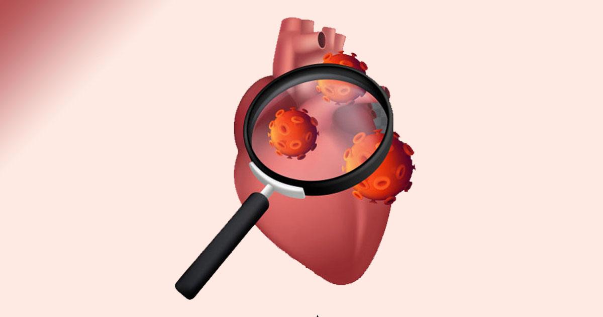 Retour à l'activité physique des enfants après une infection par la COVID19: Des restrictions ou un bilan cardiaque à faire ?