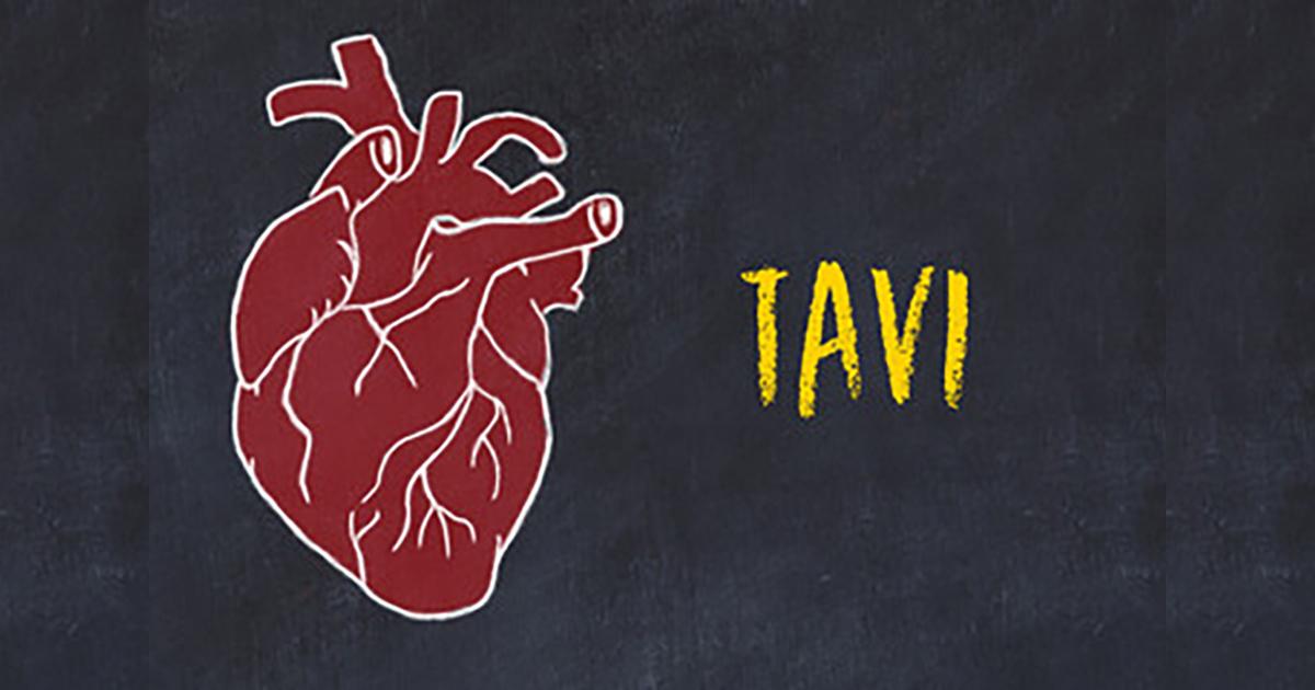Fin de la Bithérapie antiplaquettaire après TAVI : Essai Randomisé POPular-TAVI