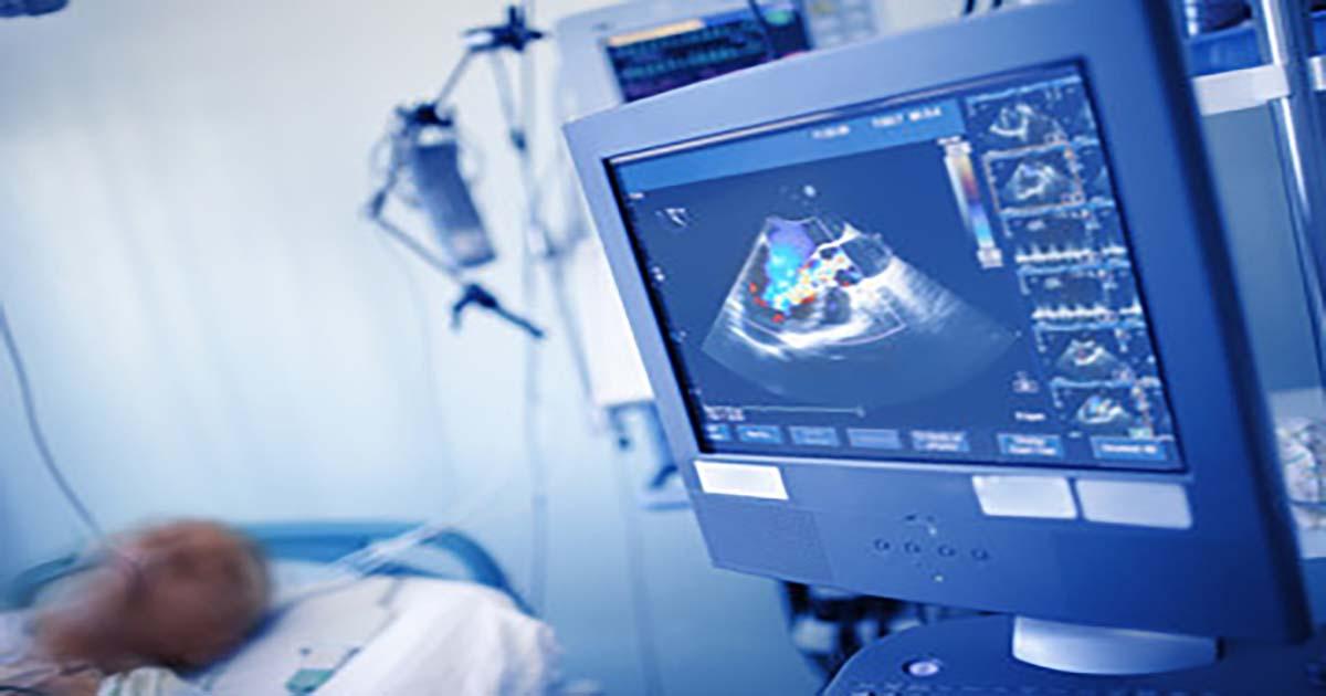 Un nouveau score de risque pour l'évaluation pronostique de l'insuffisance cardiaque à fraction d'éjection préservée : le MEDIA écho SCORE